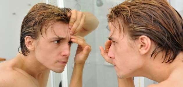L'acné, quelle plaie